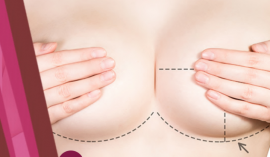 gallery/breast-augmentation-recovery-tips-632x370